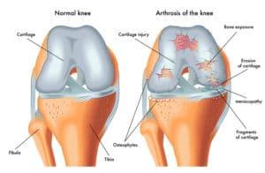 Arthritis patients-TeleLeaf.com