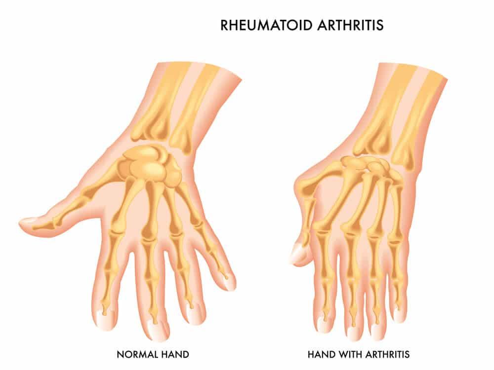 Rheuma Arthritis-TeleLeaf.com