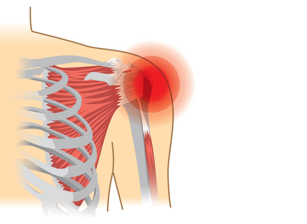 Human shoulder muscles and joints have a red sign