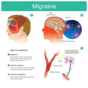 migraines in Louisiana